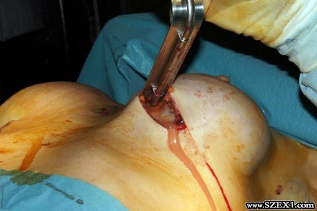 Van akiből kifolyt a PIP implantátumból szivárgó szilikon